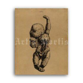 Printable Anomaly fetus skeleton, stone baby – anatomy, pathology print - vintage print poster