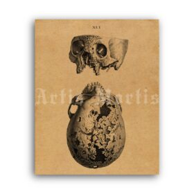 Printable Rustic human skull – anatomy, skull art, Osteographia poster - vintage print poster